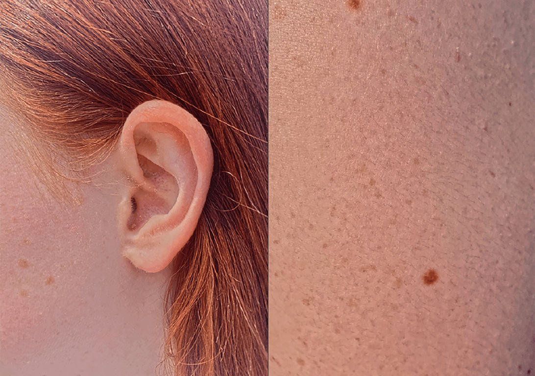 photographic spread – hair ticked behind an ear and close-up of skin